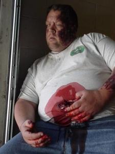 Stomach Impalement